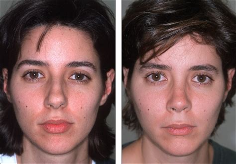 The Big Tip dr steven denenberg s plastic surgery before and