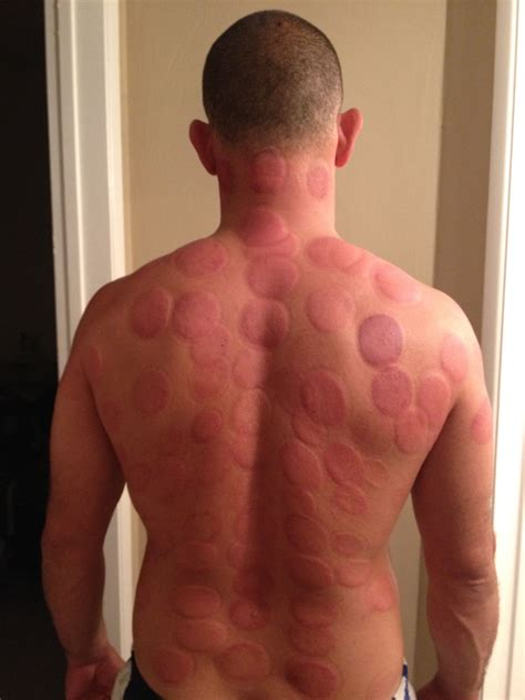 Does Acupuncture Help With Detox by Cupping Therapy Detox Http Infinityflexibility Wp