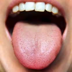 tongue color the basics of tongue analysis