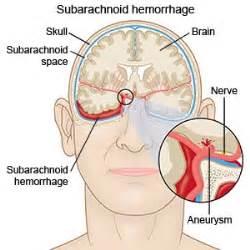 subarachnoid haemorrhage (sah) medical for free