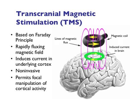 transcranial magnetic stimulation clinical applications for psychiatric practice books transcranial brain stimulation science and ethics