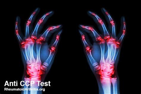 cccp testi ra and anti ccp what is the purpose of an anti ccp test