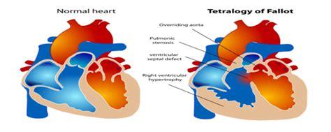 Salemba Empat Gangguan Gastrointestinal tentang jantung tetralogi of falot