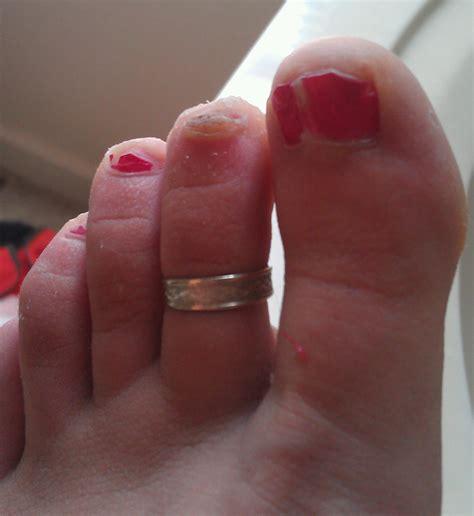 split toenail image gallery split toenail