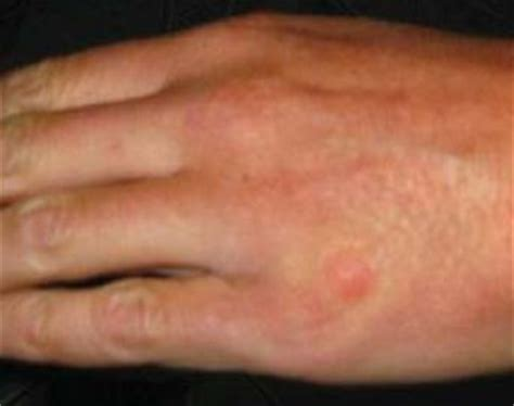 bed bug bites on hands bed bug bite marks body pictures treatment free brochure