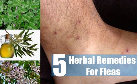 top 5 herbal remedies for fleas how to treat fleas with