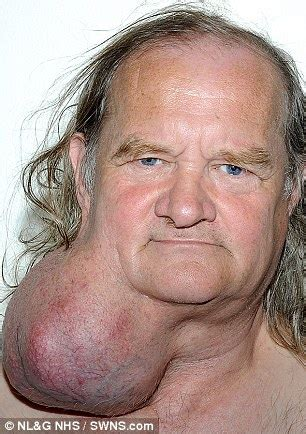 is 66 years old too old to ear bangs man has pumpkin sized tumour removed from his neck after