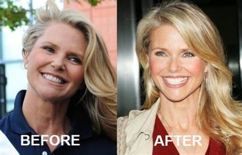 what plastic sirgery has chris evert had christie brinkley plastic surgery rumors true