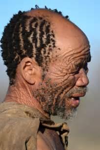 Black men receding hairline success
