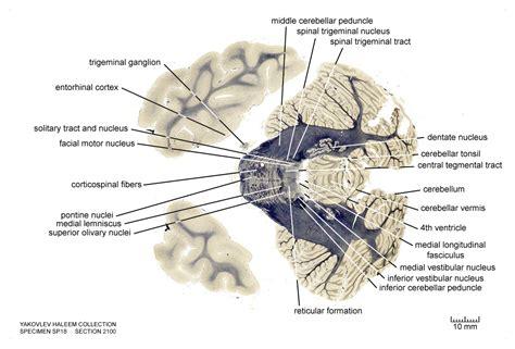 horizontal section of brain horizontal level 2100 as fiber stain