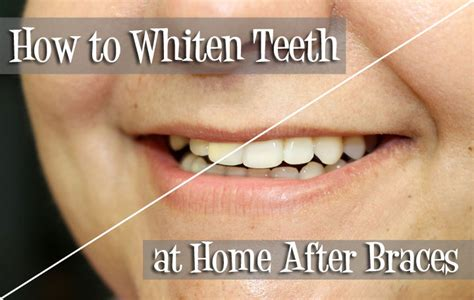 how to whiten teeth at home after braces