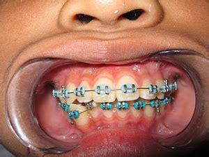 Dental Equipment Perlengkapan Behel Gigi dental ortho pemasangan behel permanen