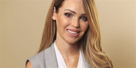 'You?re always going to get that guilt,' Katie Piper on