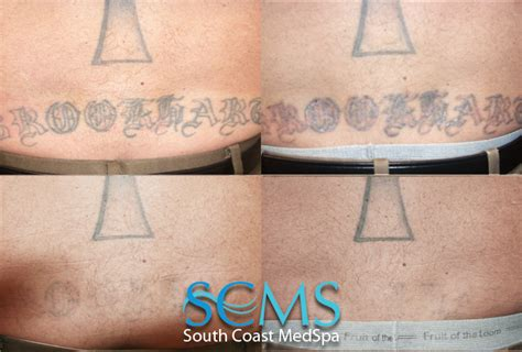 large tattoo removal before and after laser removal san diego removal los