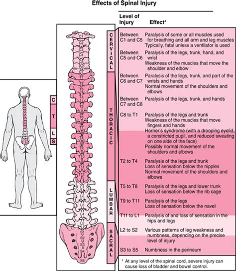 spinal cord injury diagram alex will walk again 187 2008 187 november