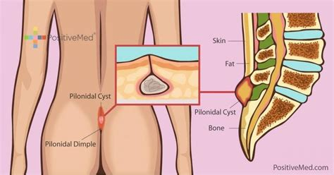 pilonidal cyst what is pilonidal disease and ways to treat it naturally
