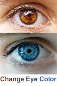 is it possible to change eye color change eye color with laser surgery brown to blue