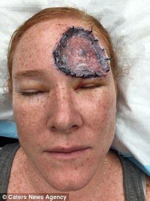 austin mother mistook her skin cancer for hormonal changes