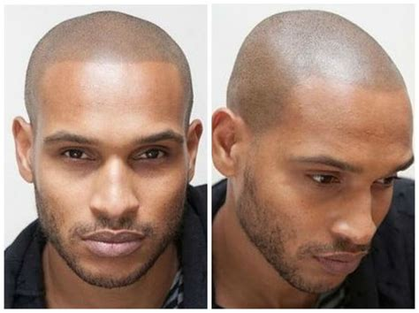 male pattern baldness tattoo men have found a unique solution to hiding male pattern