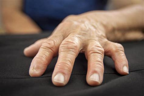 Thumb And Fingers arthritis in fingers