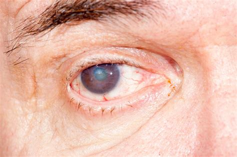 eye health dangers eye health advice and remedies bel marra health