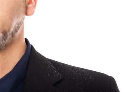 dermatite seborroica alimentazione dermatite seborroica e alimentazione dermatite