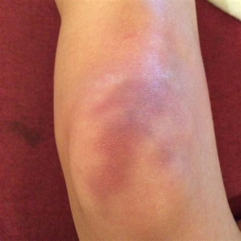 stechen im knie innen immernoch starke beschwerden am knie schmerzen h 228 matom