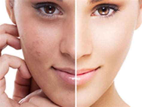 does nono pro work on african american skin home healthy living life facts