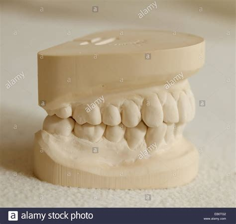 dental mold stock  dental mold stock images alamy