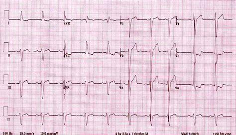 Lvh Pattern | left ventricular hypertrophy
