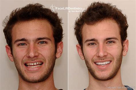 Next Facelift For Your Teeth 2 by Braces Vs Porcelain Veneers Instant Braces
