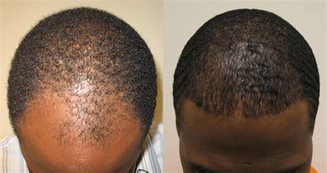 hairline restoration for black african american hair transplant patients page dr brett