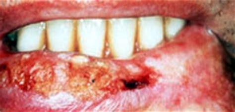 Lipstick De Avon Con Plomo lapices labiales contienen plomo y causa de c 193 ncer conciencia radio 169 2006 2008