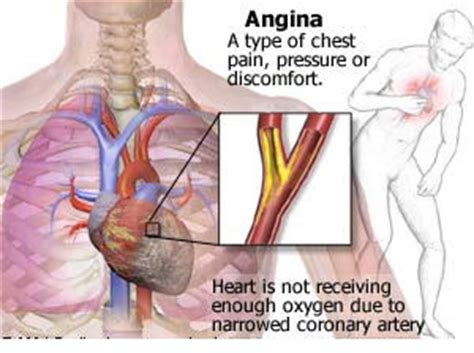 chest pain and light headed chest pain