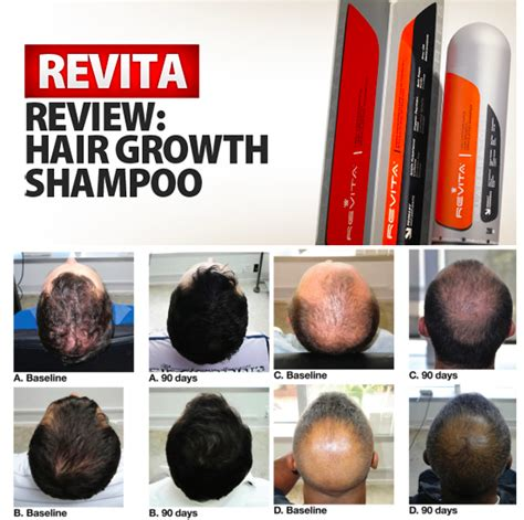 hair growth supplements for revita locks revita hair growth shoo review what are the reviews