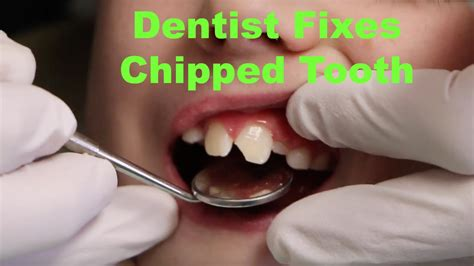 how do you fix a chip in a bathtub child gets chipped tooth fixed murfreesboro cosmetic