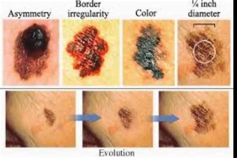 cancer de piel c 243 mo reconocer el c 225 ncer de piel esto podr 237 a salvar tu