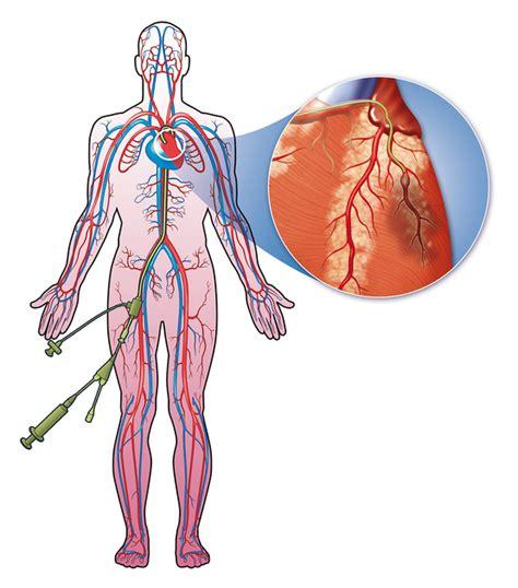 l infarto del miocardio infarto del miocardio cure italia