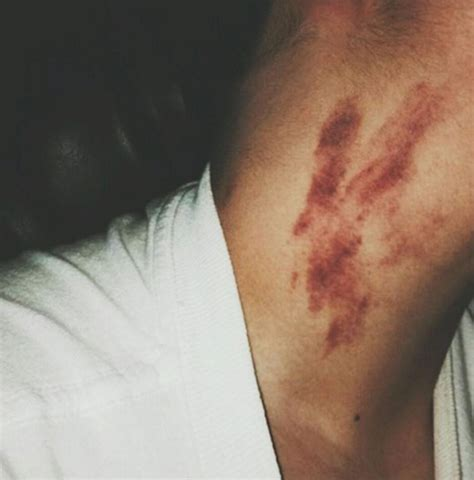 images of love bite on neck 17 year old dies after receiving a love bite in new