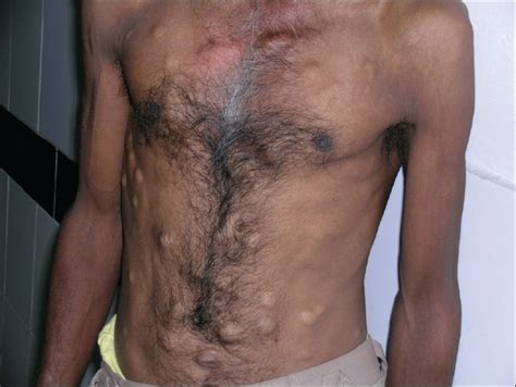 how to soften chest hair steatocystoma simplex and multiplex symptoms and pictures