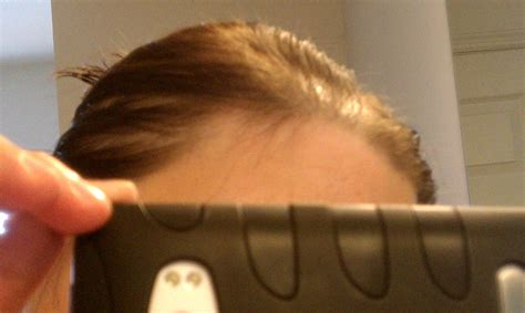 would a headband wig hide temple thinning spironolactone for hair loss photo corner of hope mane