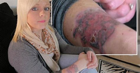 tattoo disasters left with horrific acid burns after trying to