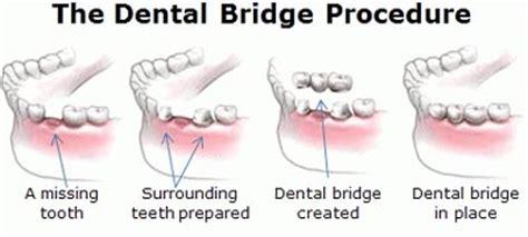dental bridge restoration to fix crack gaps missing teeth