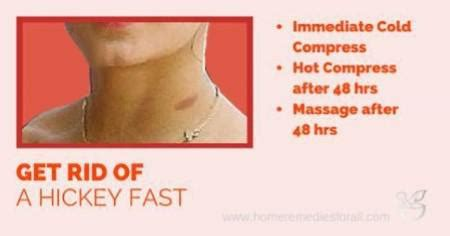 fastest ways to get rid of a hickey