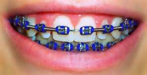 braces colors ideas blue colored braces my favorite color braces