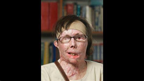 carmen tarleton face transplant recipient puts new look on display photos