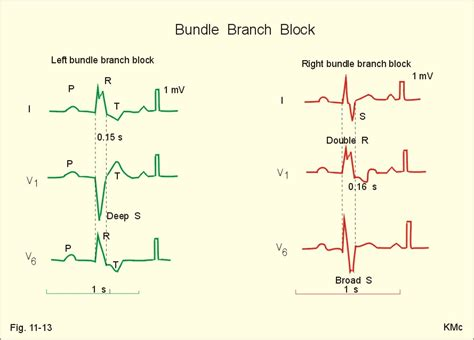 lbbb pattern can medications cause right bundle branch block