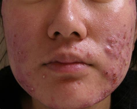 best acne health secrets tretinoin best acne for acne