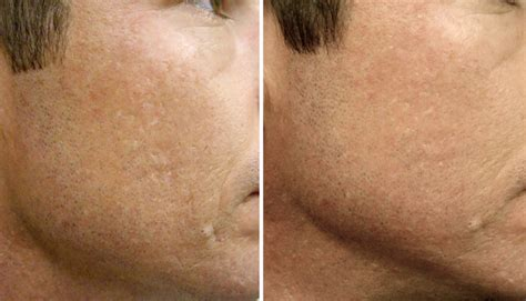 collagen induction therapy cit cosmedical skin