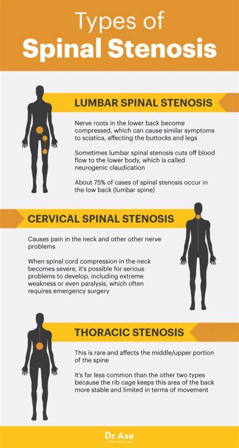 inversion table for spinal stenosis 216 best images about cervical spondylitis cervicalgia